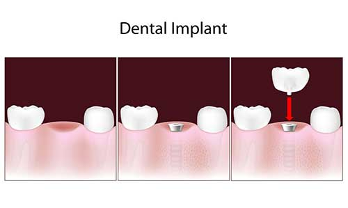 Replace Missing Teeth in Temple