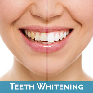 Teeth Whitening in Temple